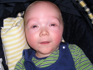 What Is Sotos Syndrome Sotos Syndrome Support Association